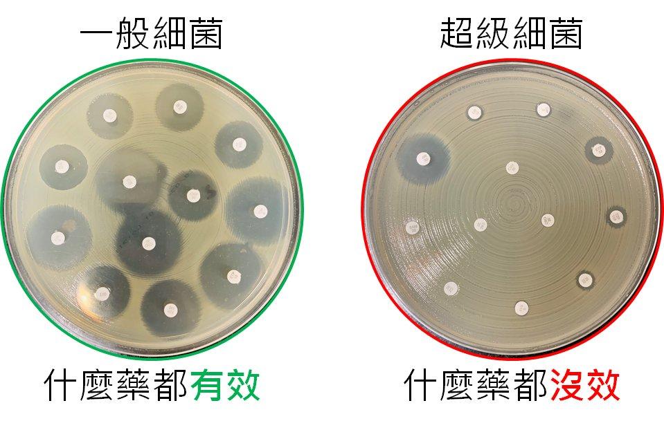 超級細菌難再躲藏了  林口長庚開發「AI抓菌」準確性8成