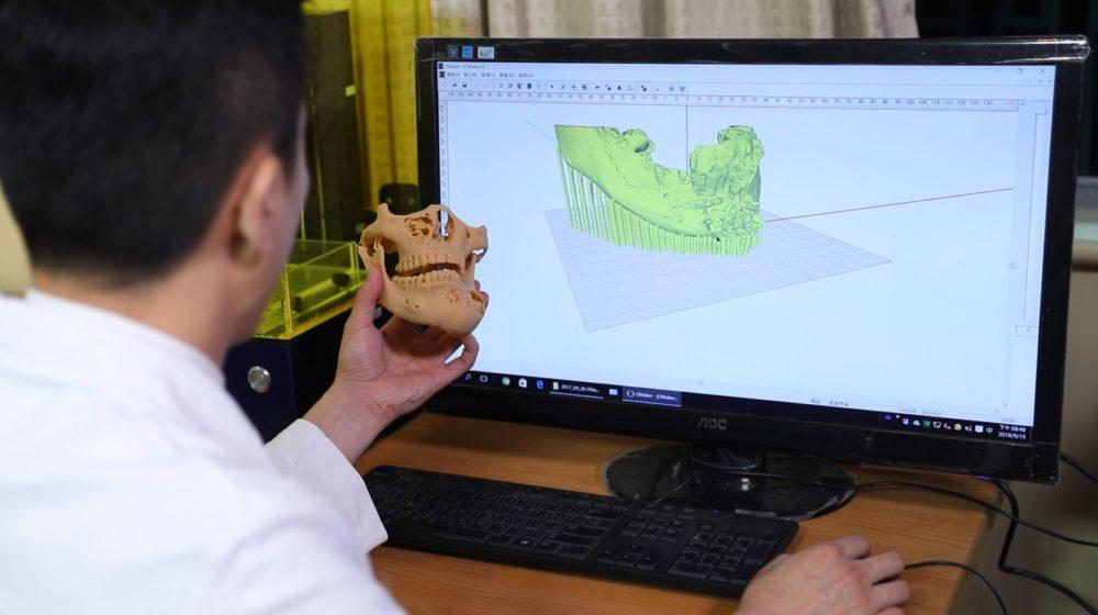 ACOMS在台舉辦 台灣3D列印協助提升手術效率