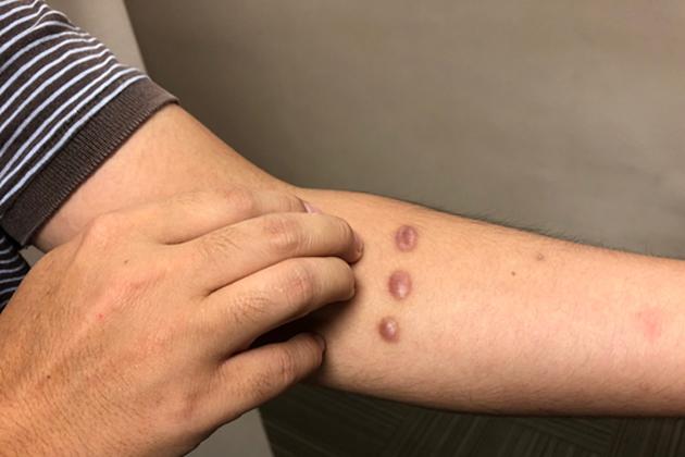 【有影】愛美必看!醫師揭秘 身體這幾處最易「癢」出「疤」