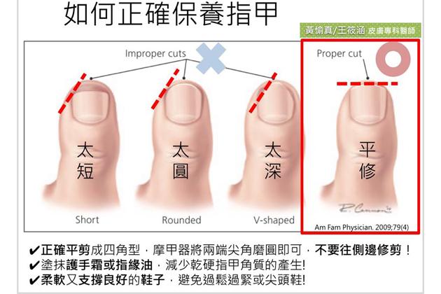 指甲剪太乾淨真是病! 當心化膿變形變雞爪