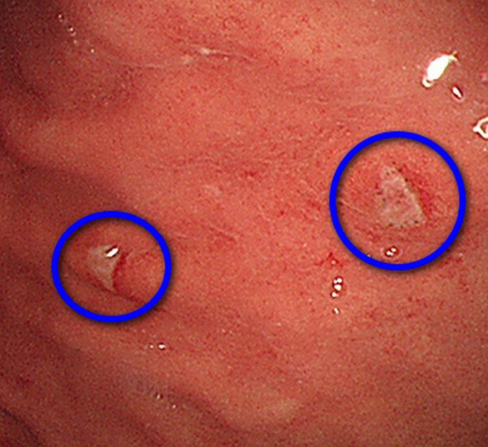 糞便潛血有反應… 看似潰瘍竟是罕見腎癌轉移