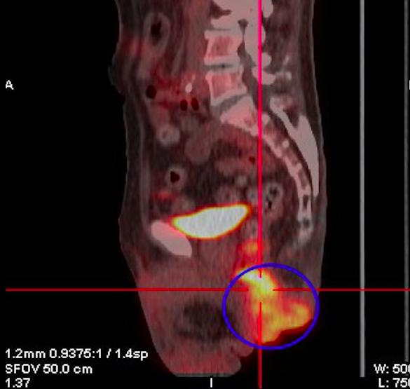 肛門口突出物「雙腳難併攏」 竟是腸癌竄出體外