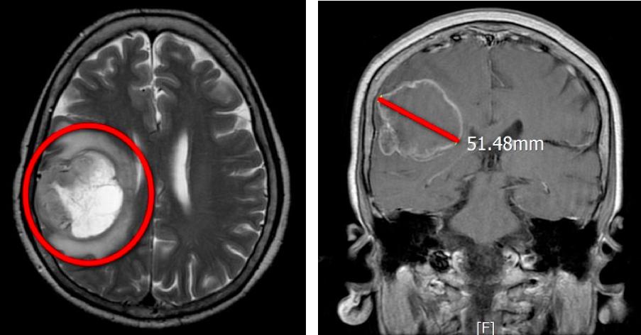全身癱瘓倒地非中風 驚見5公分大腦瘤作怪