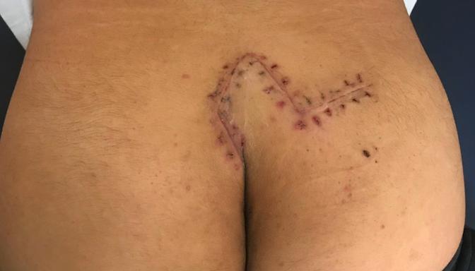 台北騎到宜蘭引爆「尾椎劇痛流膿」  多毛男學生竟是罕見潛毛症