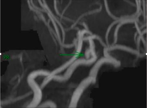 腦中不定時炸彈「腦動脈瘤」尺寸有關係!  醫師警告最易破裂大小