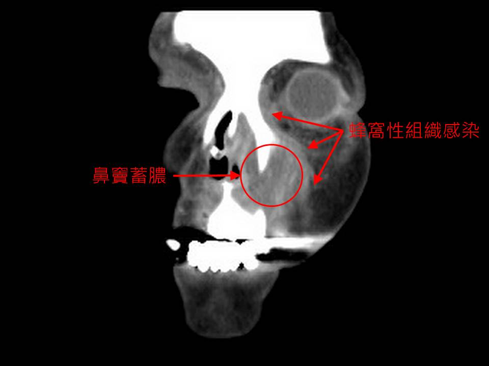 眼眶、臉頰莫名紅腫  顏面蜂窩組織炎竟由小感冒害的