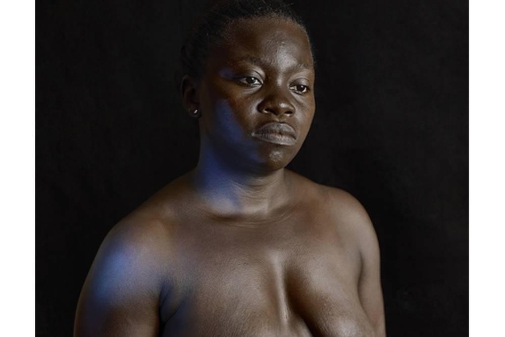 百萬少女死於驚悚「燙乳」習俗! 男權主義下性象徵的抹煞與侵害