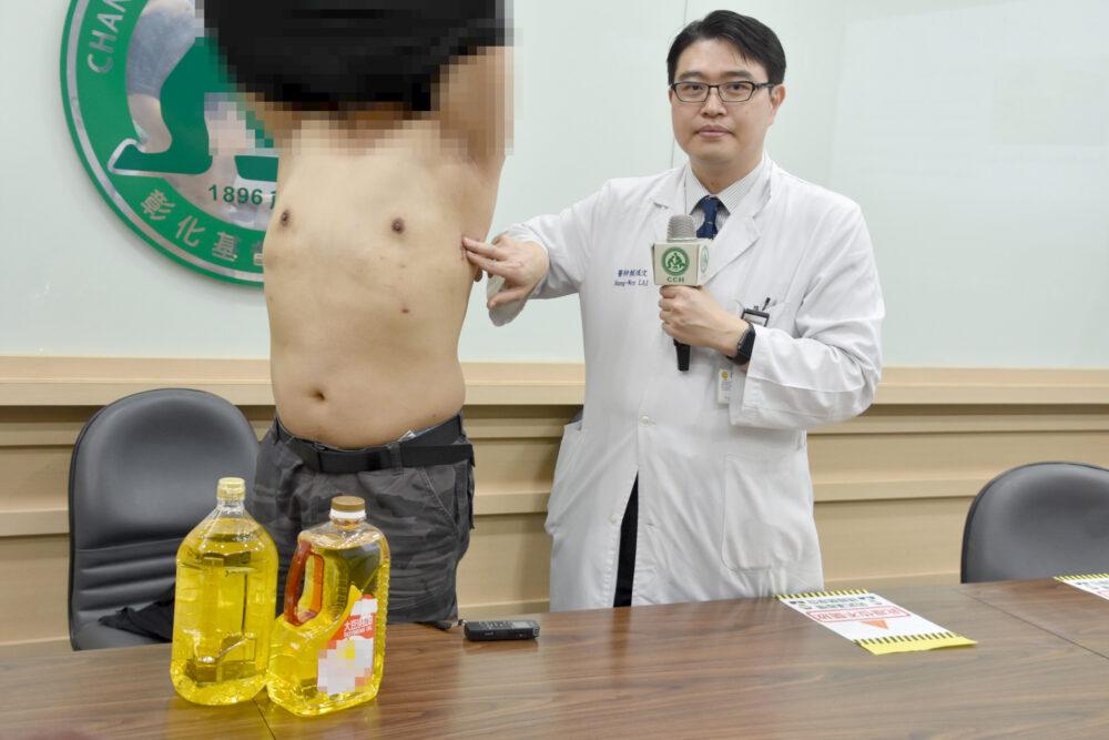 國中遭霸凌幻想「變女生可受保護」  男自體注射3公升沙拉油成D奶