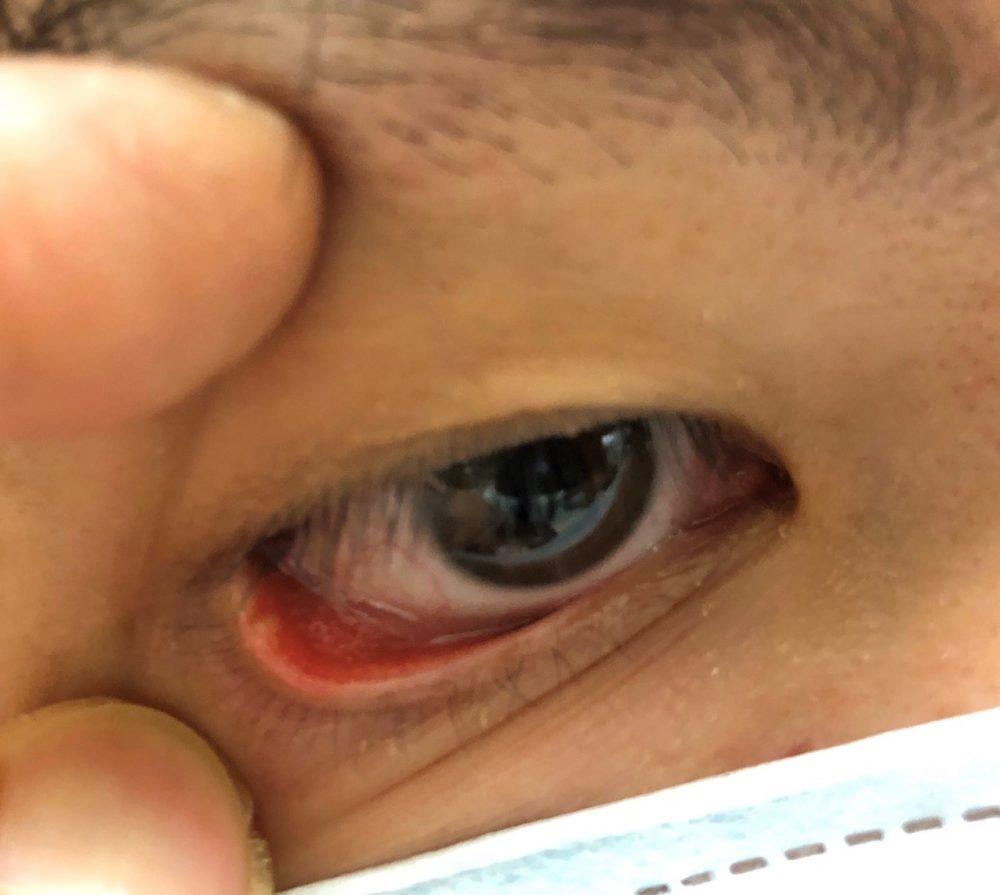 什麼?「針眼」有兩種!  一種熱敷更腫痛、一種冰敷好不了