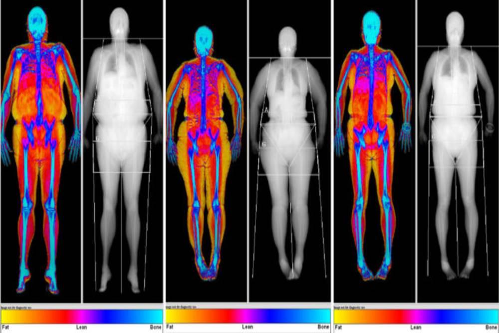 徹底擺脫脂肪這樣做! 醫曝男女3大肥胖體型的減脂策略