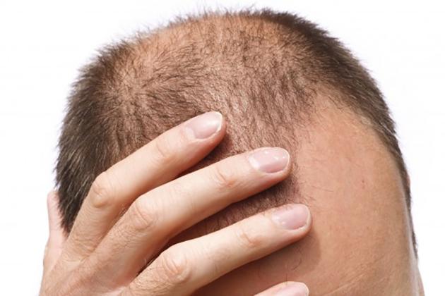 落髮年輕化,按摩「黃金3招」挽救掉髮危機