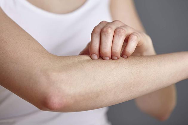 長庚研究:重度乾癬不只皮癢,當心眼睛也發炎!