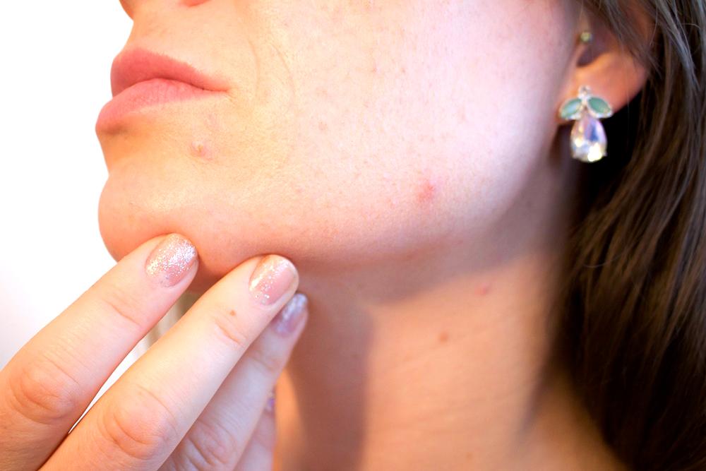 抗青春痘為什麼一直不成功?原因可能出在這3種狀況