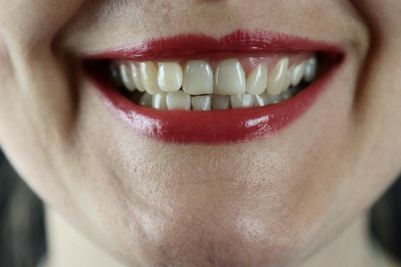 【有影】牙齦出血腫脹非火氣大  牙醫闢謠:漱鹽水吃中藥治標不治本