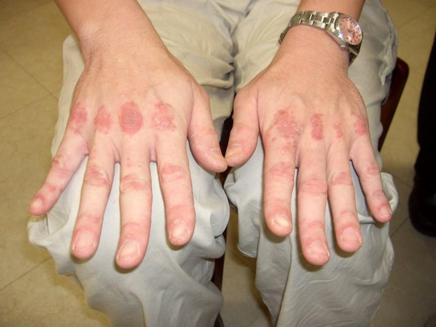 四肢無力、渾身冒不明紅疹  竟是「皮肌炎」上身肌肉慘遭破壞
