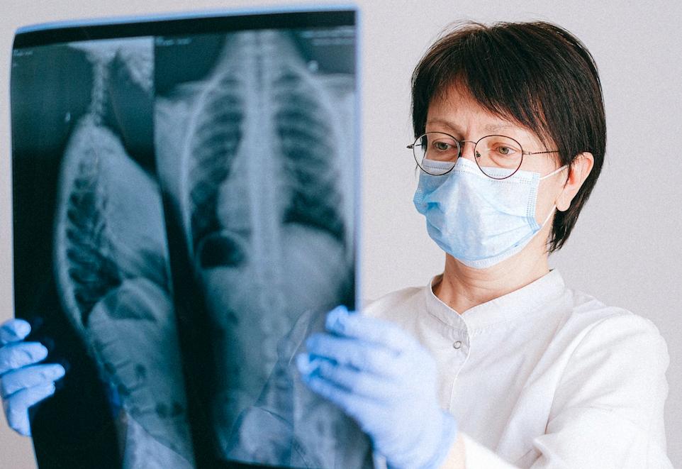36歲美女議員「右肺異常」  台大肺癌權威開口要這兩類人注意!