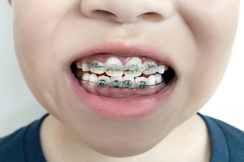 【有影】我家孩子要戴牙套嗎?兒童矯正Q&A大集合
