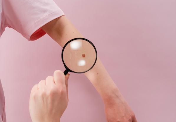 熟男腳底黑痣驚變「索命痣」  短短半年發痛又潰爛竟已晚期皮膚癌