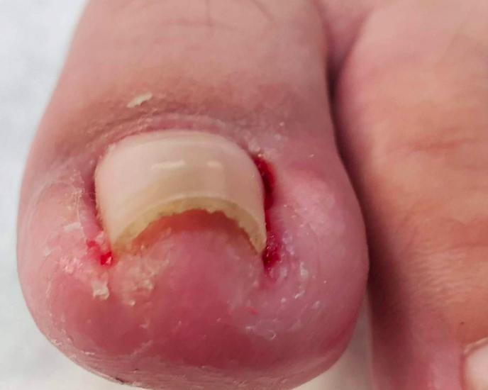 「凍甲」指甲越剪越小片  3症狀發作當心你離拔指甲只剩一步!