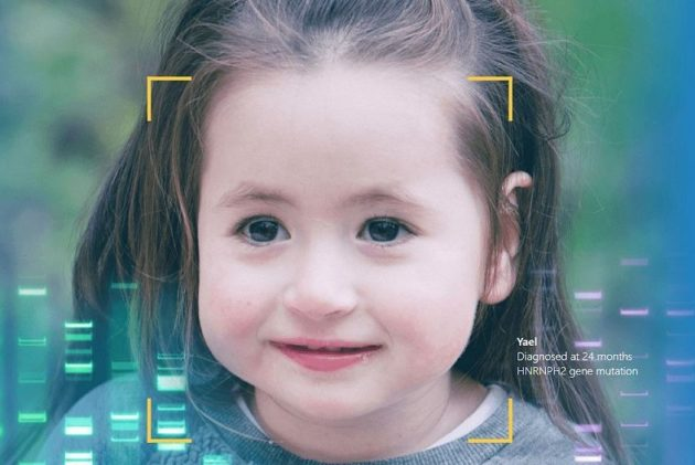 從臉就能看出來?臉部辨識、AI可用於辨識罕見遺傳疾病