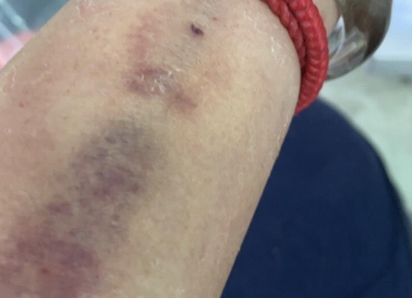 手腳滿滿「巴掌大瘀青」  人妻遭疑家暴?其實是C肝引發致命危險
