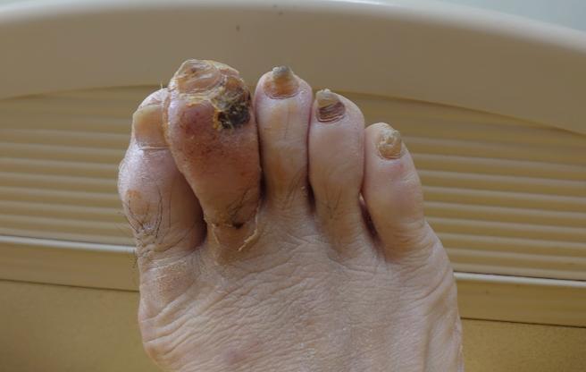 他沒受傷卻蜂窩性組織炎「2年3度住院」   禍首竟是腳上躲著這病