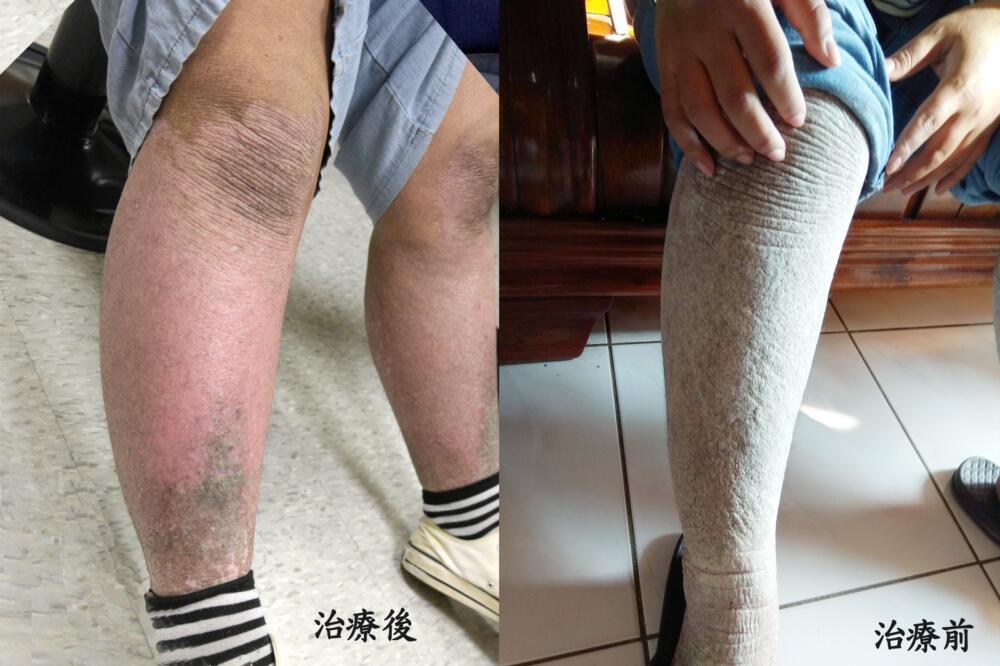 一雙腳突冒「灰白色鱗狀皮」無一寸正常皮膚  罹這病害她躲家十多年