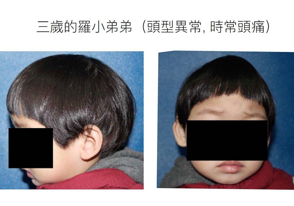【有影】家長心驚!3歲童常頭痛「頭頂凸」 怪怪船型頭竟是罕見病