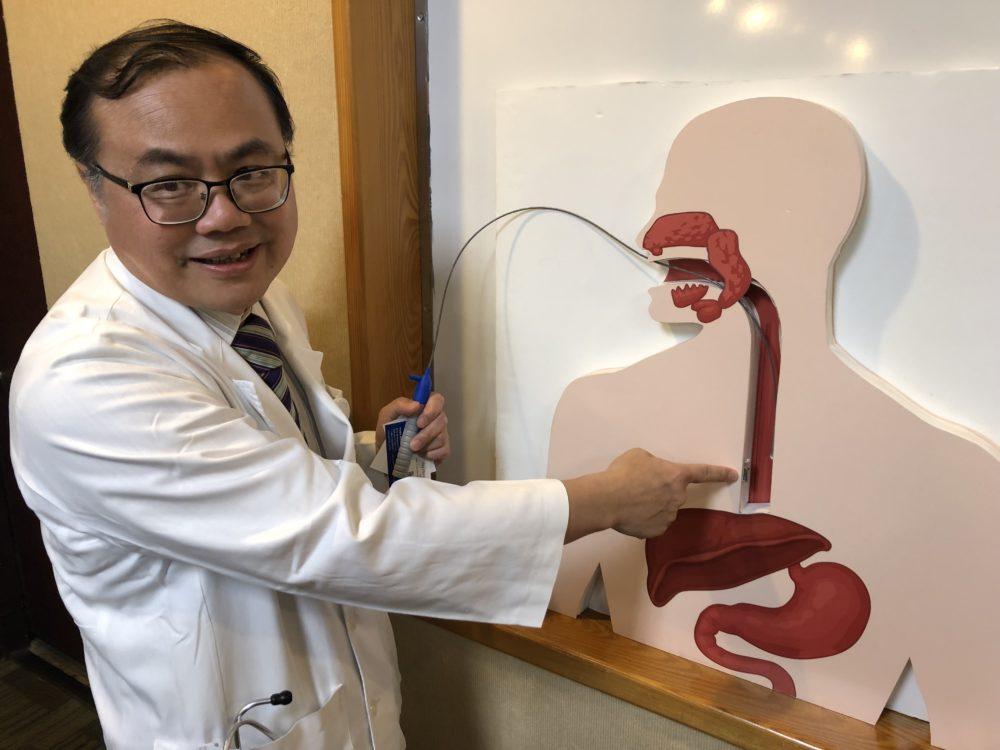醫療新知》無線膠囊「釘」食道  胃食道逆流監測幾近零痛楚