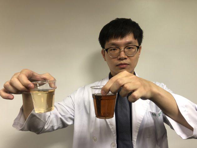 【有影】遊泰國爽做這事 男尿「紅茶尿」才知麻煩大了