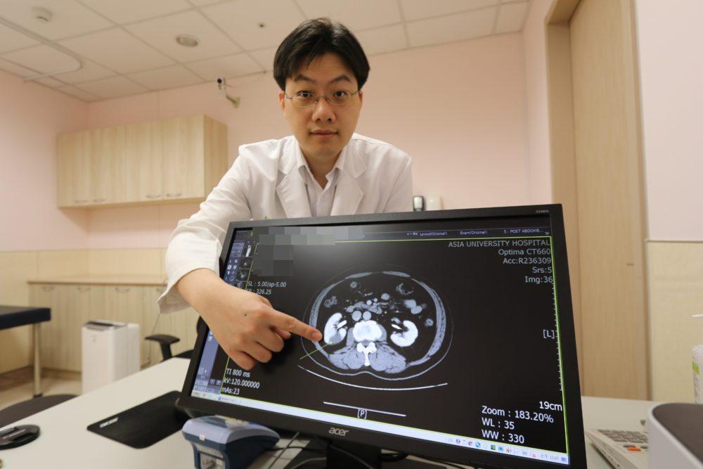 腎臟也會「中風」!  持續腰痛、下背痛或血壓飆高皆恐是警訊