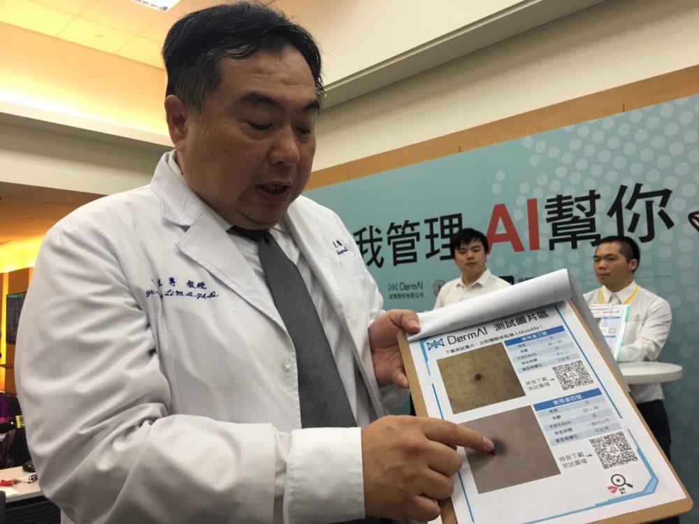 台灣醫療AI再跨一步  靠照片可篩出異常「痣」