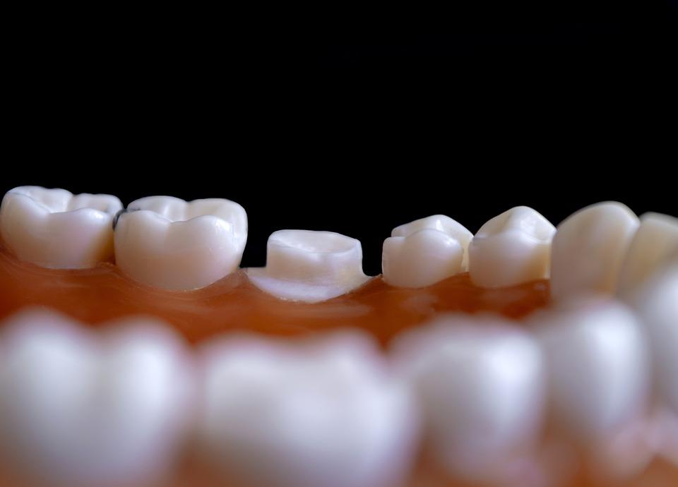 年逾60歲還有必要牙齒矯正?  牙醫揭密:比美觀更重要的是「它」