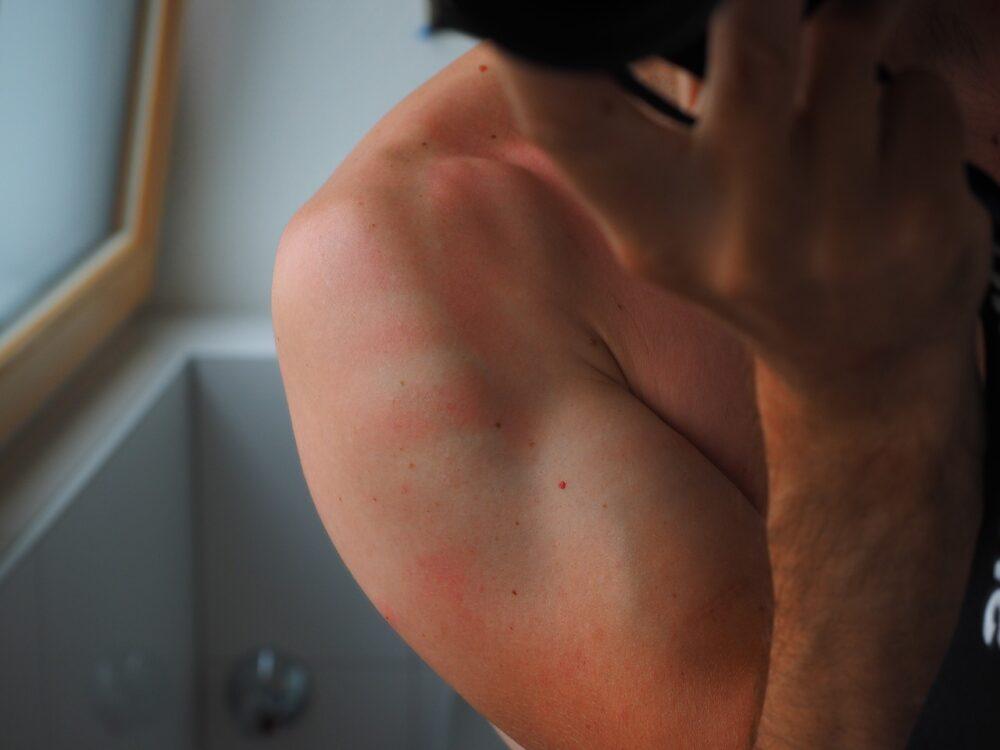 有傷口貼「人工皮」就可痊癒?  皮膚出這5大狀況不適用